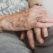 Fragibilità: in aiuto alle persone terremotati più deboli